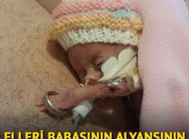 Elleri babasının alyansının içinden geçebilen prematüre bebek aylar sonra hayata tutundu! İşte onun son hali…
