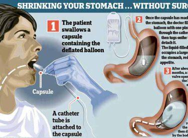 Ameliyatsız, ağrısız mide küçültme…