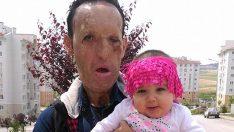 Yüz nakli yaptıran Recep Sert, bebeğiyle fotoğrafını paylaştı