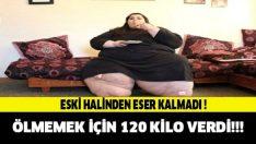 Yaşamak İçin 120 Kilo Verdi!! Şimdiki haline İNANAMAYACAKSINIZ..!