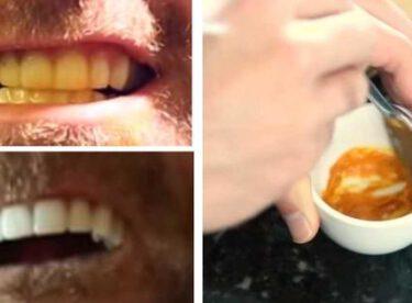 Sadece 3 Malzeme İle Sararmış Dişlere Elveda – Bembeyaz Dişlere Merhaba Deyin