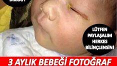 3 aylık bir bebek, fotoğraf makinesinin flaşı yüzünden kör oldu