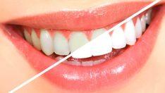 Dişleri beyazlatmanın pratik yolları!