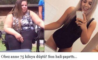 Obez anne 75 kiloya düştü! Son hali şaşırttı…