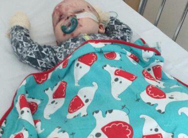 Aşısı yaptırılmayınca zavallı bebek hem kendi bu hale geldi hem de…
