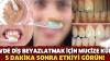 Aslında evde diş beyazlatmak bu kadar kolay! İşte en kolay ve en etkili yöntem…