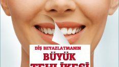 Diş beyazlatmadaki büyük tehlike!