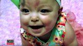 Bu Bebek Devasa Büyüklükte Bir Dille Doğmuştu Bu Hali Ameliyat Sonrası. Ameliyat Öncesi Halini Gördüğünüzde Doktorlara İyi ki Varlar Diyeceksiniz