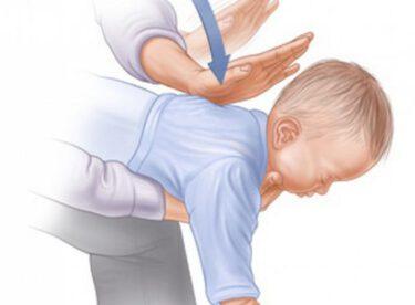 Anne Babaların Dikkatine: Boğazına gıda kaçan çocuğa ilk yardım nasıl yapılmalı ?
