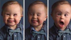 Reklam Ajansı Down Sendromlu Diye Oğlunu Reddetti Annenin Cevabını Yüz Binlerce Kişi Beğendi