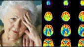Demansta Erken Teşhis Çok Önemli – İşte Demans Hastalığının 10 Erken Belirtisi