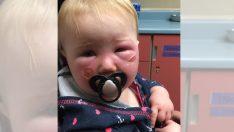 Bebeğin Önce Suratı Yandı Sonra Soyuldu – Şimdi Annesi Diğer Ebeveynleri Tehlike Hakkında Uyarıyor