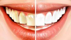 Dişlerinizi Fırçalamadan 15 Dakika Önce Bunu Yaparsanız Dişlerinizin Daha Beyaz Göründüğünün Farkına Varacaksınız