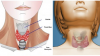 İşte Tiroid Hastası Olduğunuzun 6 Gizli İşareti – Bende Yoktur Demeyin Mutlaka Kontrol Edin