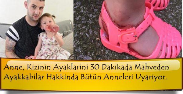 Anne, Kızının Ayaklarını 30 Dakikada Mahveden Ayakkabılar Hakkında Bütün Ebeveynleri Uyarıyor.