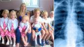 8 Çocuklu 31 Yaşındaki Babanın Ölüm Nedeni Herkesi Şaşırttı