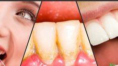 Dişlerdeki Tartar ve Plakları Temizlemenin Doğal Yolları
