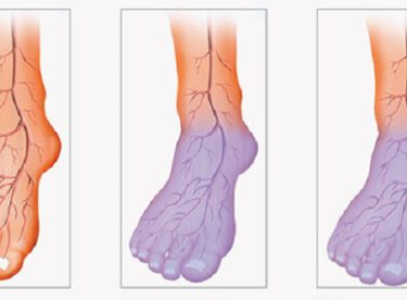 Ellerin ve Ayakların Sürekli Soğuk Olmasının Nedeni Yetersiz Kan Dolaşımıdır İşte Size Doğal Çözüm Yolları