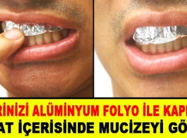 Dişlerinizi alüminyum folyo ile kaplayın.. 1 saat içerisinde mucizeye şait olun