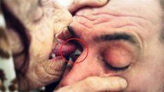 Mucize şifalı dil: Hastaların gözlerini yalayarak körlüğü iyileştiriyor