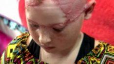 11 Yaşındaki Kız Ve Annesi Lunaparka Gitti – Annesinin Gözleri Önünde Kızın Kafa Derisi Yüzüldü