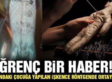 Çocuğa yapılan işkence röntgende ortaya çıktı!