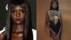 Ten Rengi Yüzünden Aşağılandıktan Sonra Kariyerinden Kaçan Modelin Efsanevi Dönüşü