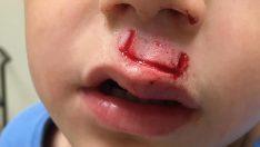 Stres Çarkı Bu Sefer De Bir Çocuğun Suratında Patladı – Baba Diğerlerini Uyarıyor