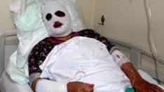 Lavabo açıcıya sıcak su döken kadının yüzü feci şekilde yandı…