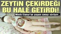 Minik Elanur zeytin çekirdeği yüzünden yatağa mahkum oldu