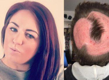 Saçlarını boyamak için aldığı açıcı yüzünden kel kaldı! Kadın herkesi uyarıyor