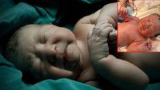 Yeni Doğan Bebek Elinde Annesinin Taktırdığı Spiral İle Dünyaya Geldi