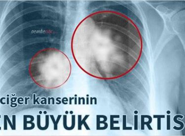 Akciğer kanserinin en büyük belirtileri işte bunlar aman dikkat, erken teşhis edilirse grip kadar basit tedavisi