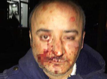 Öğrenci velisi ve yakınları öğretmeni dövdü, boyun kemiğini kırdı!