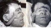 Tarihin ilk plastik cerrahi ameliyatı! Son hali inanılmaz