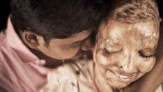 Saplantılı aşığı yüzüne kezzap attı, hayatının aşkını hastanede buldu!