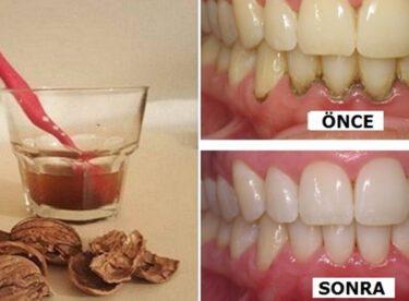 1 Malzemeyle Işık Işıl Dişler! ( Tartar, enfeksiyonlar, iltihaplı diş hastalıkları…)