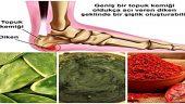 Topuk Dikenine Karşı, Denenmiş 3 Doğal Yöntem