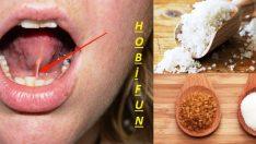 Bu Basit Karışımı Dilinizin Altına Koyun ,Bakın Uyku Probleminiz Nasıl Çözülecek