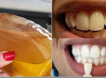 Evde Kendiniz Bu Doğal Yöntemle Dişlerinizi Bembeyaz Yapabilirsiniz Hem de Sadece Her Evde Bulunan 3 Malzeme ile