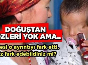 Bebeğin doğuştan gözleri yok ama…