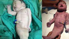 'Deniz kızı' dünyaya geldi! Doğduktan 4 saat sonra…