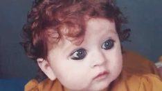 Küçükken Ona Canavar Dediler – 20 Yıl Sonra Son Gülen O Oldu