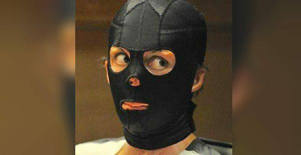 Yangından Zar Zor Kurtuldu – 2 Yıl Sonra Maskesini Çıkarınca Sırrı Ortaya Çıktı