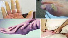 Elleriniz ve Ayaklarınız Yaz-Kış Soğuk mu? Peki Ne Yapmanız Gerekiyor?